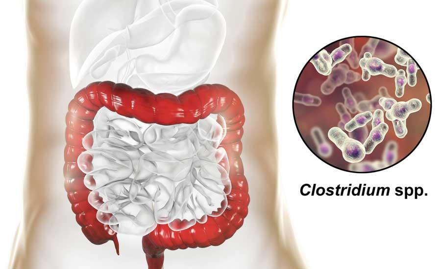 Clostridium-Aug-20-2019