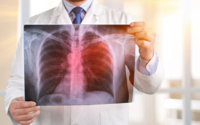 Amino acids aid in diagnosis of tuberculosis infection