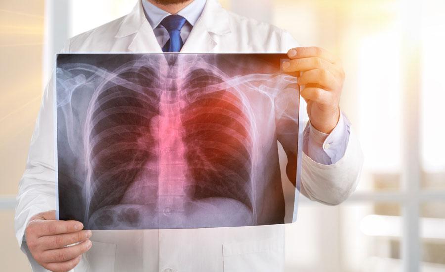 diagnosing tuberculosis with metabolomics